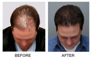 Carolina Dermatology | The Hair Center | Patient Before and After | Charlotte NC