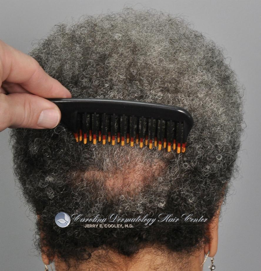 2249-african-american-woman-FUSS-one-year-10.jpg