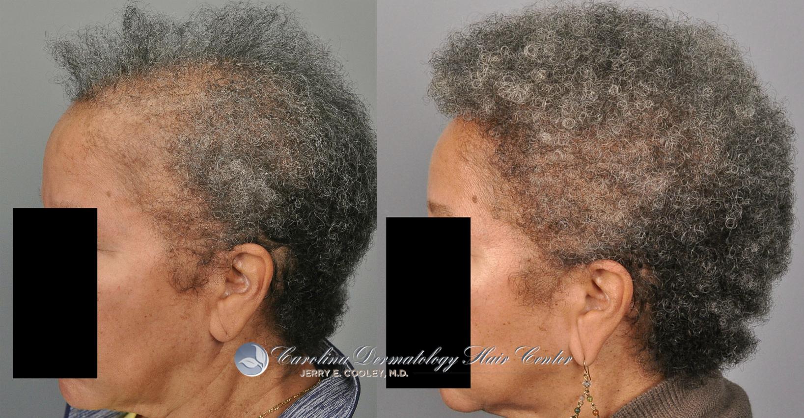 2249-african-american-woman-FUSS-one-year-4.jpg