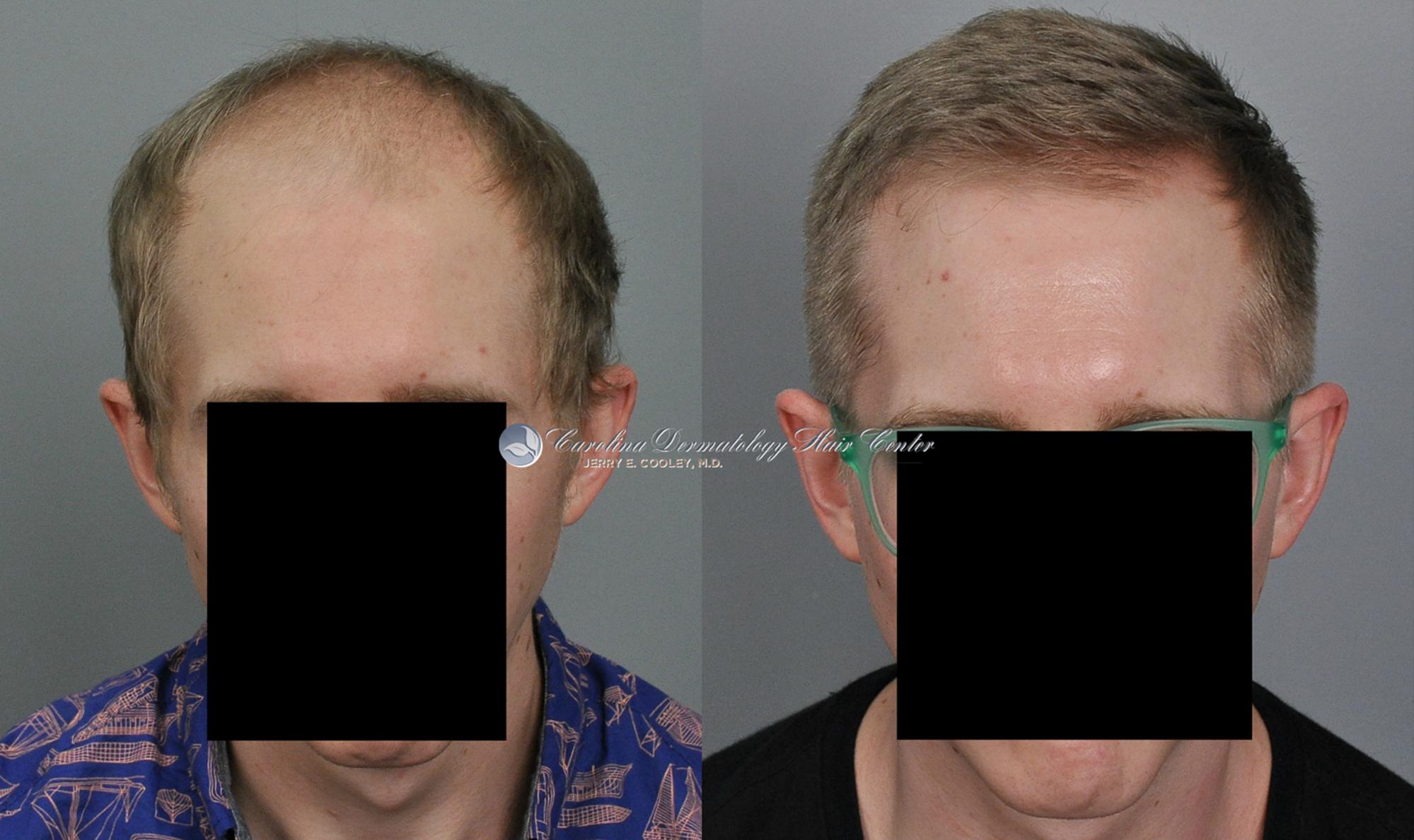 north-carolina-hair-transplant-3618-FUT-1.jpg