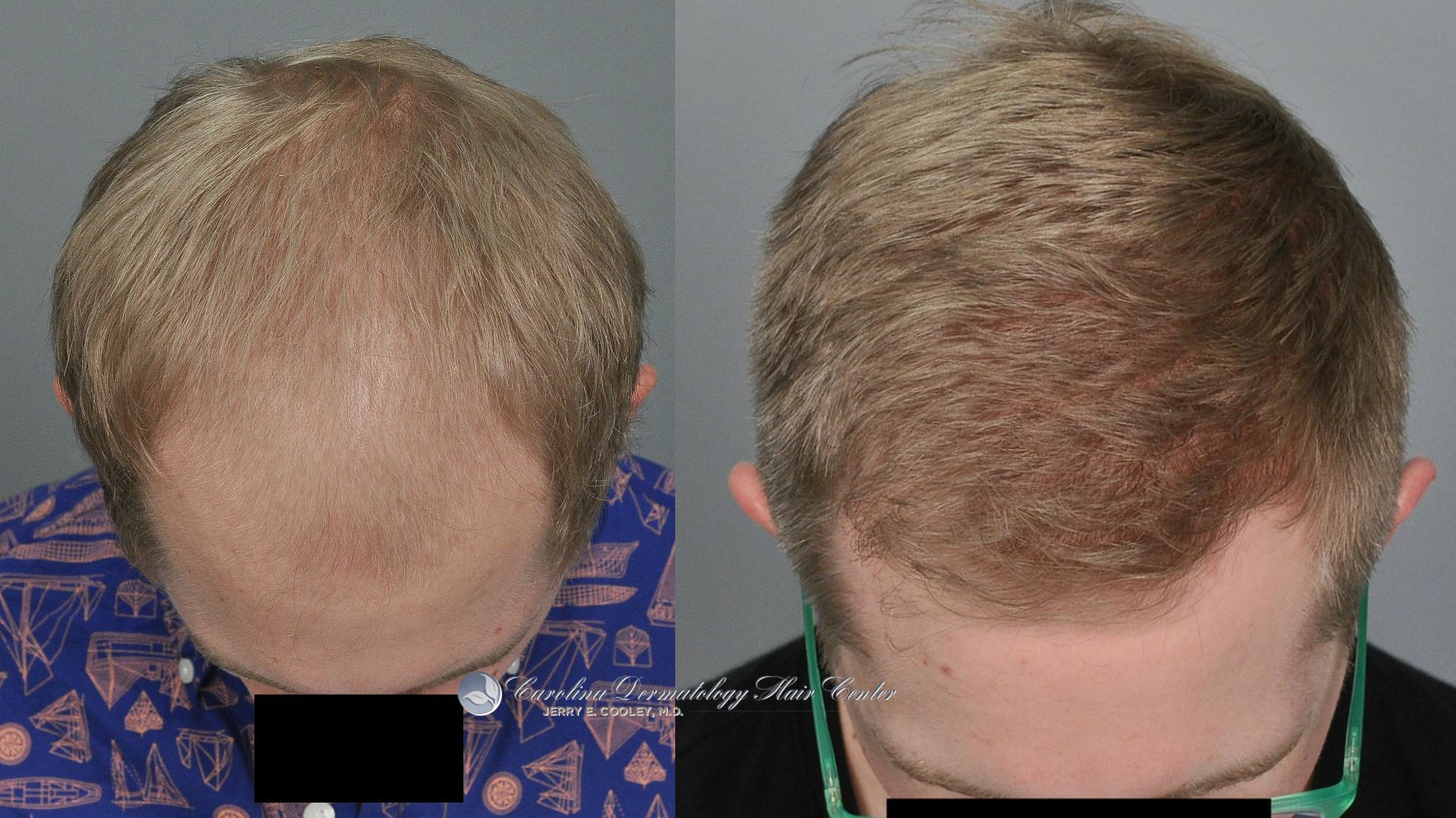 north-carolina-hair-transplant-3618-FUT-2.jpg