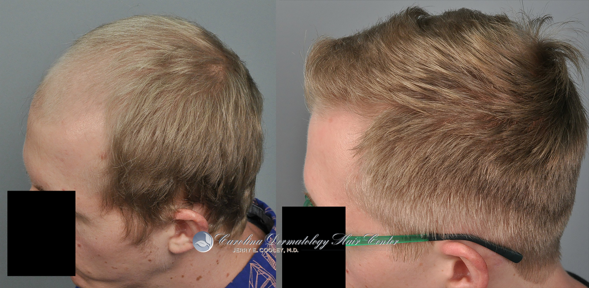 north-carolina-hair-transplant-3618-FUT-3.jpg