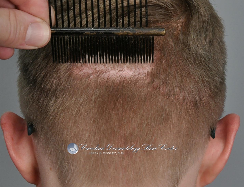 north-carolina-hair-transplant-3618-FUT-7.jpg