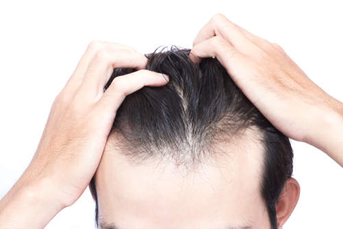 Permanent Or Temporary PRP For Hair Loss Treatment Amazing Male Or Female Pattern Baldness Treatments