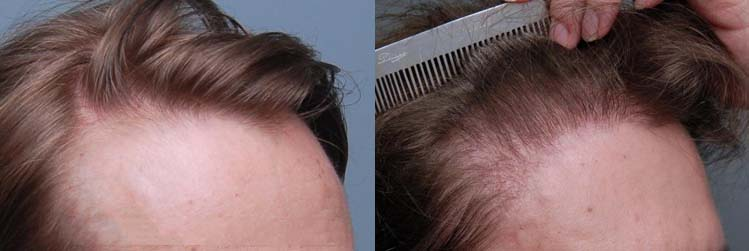 Patient 64 Transgender Hair Transplant  Cooley Hair Center-6057