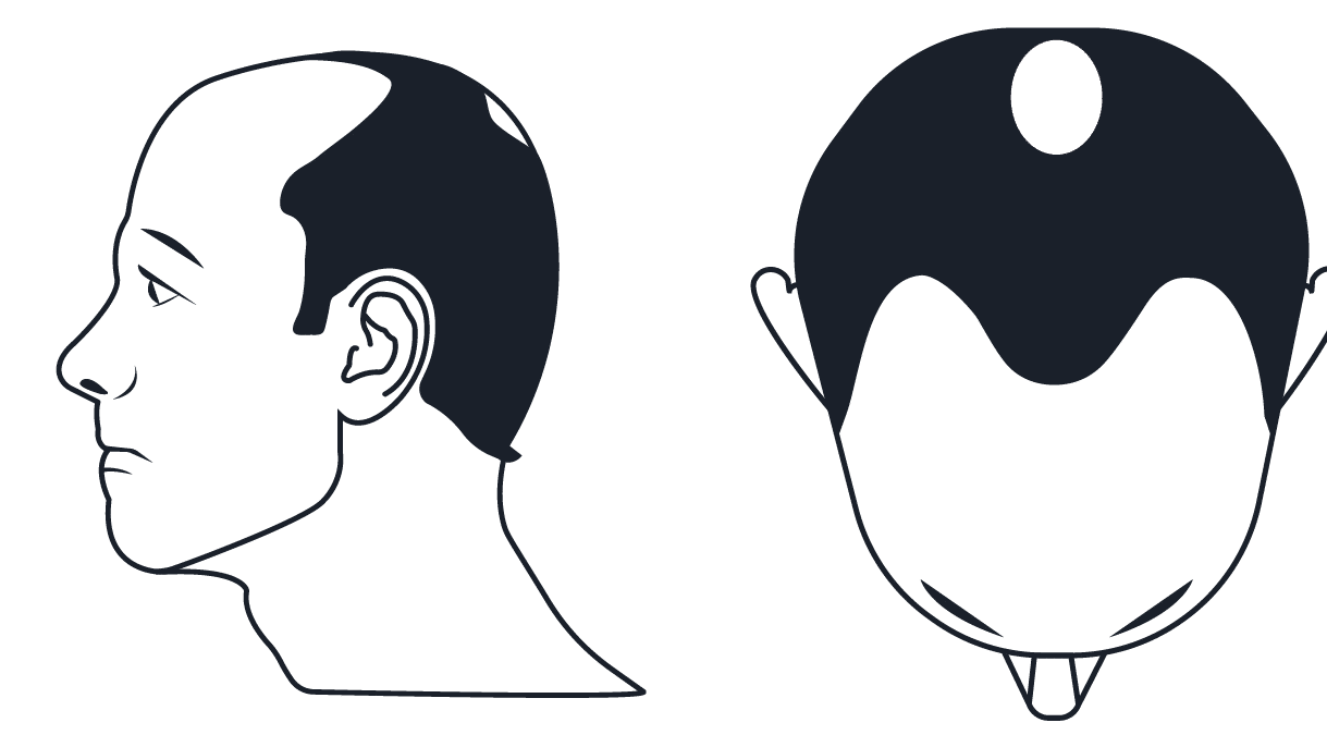 Are There Hair Transplant Side Effects?