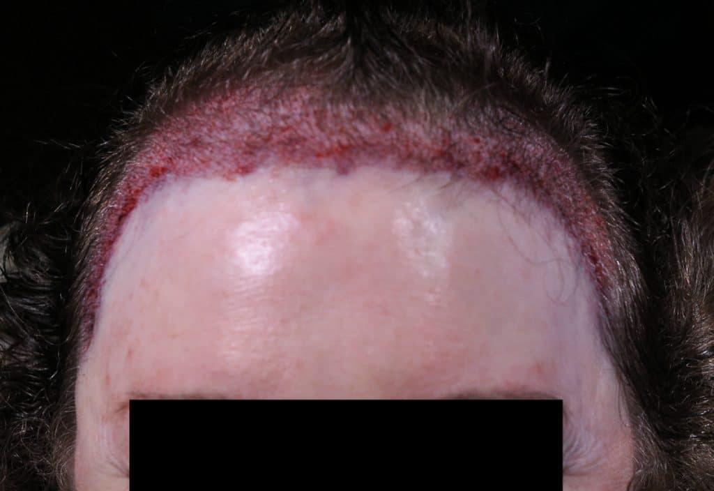Does a Vitamin Deficiency Cause Hair Loss?