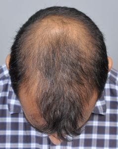 Are There Any Side Effects of PRP for Hair Restoration?