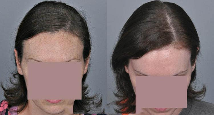 Read more about the article Hair Restoration for Women Restores Looks and Confidence
