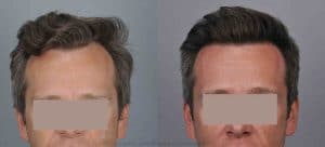 Natural Looking Hair Transplant