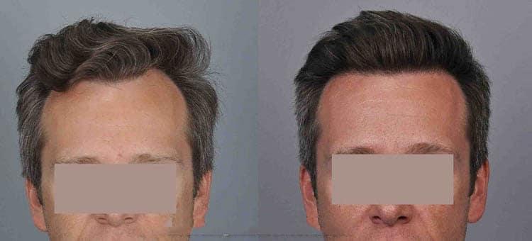 Natural Looking Hair Transplant